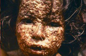 Wat zijn de dodelijkste virussen ter wereld? (een top 10)