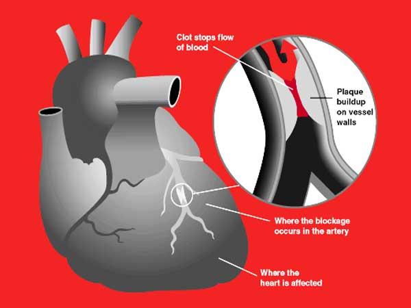 Hard werken verhoogt de kans op hartaanval met 33%