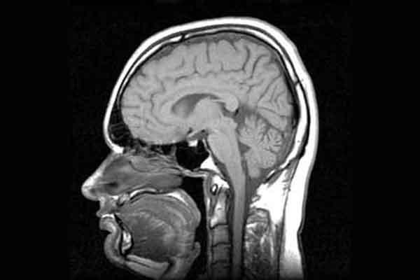 Hoe kom ik van mijn hoofdpijn af? Twintig tips