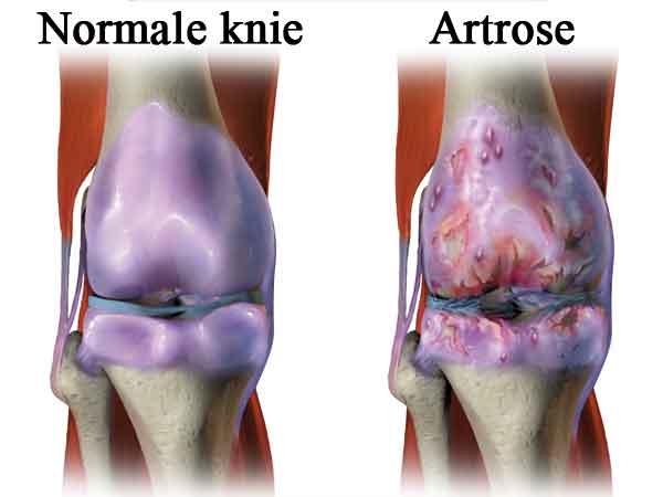 Meest voorkomende ziekte in Nederland is artrose – De top 40