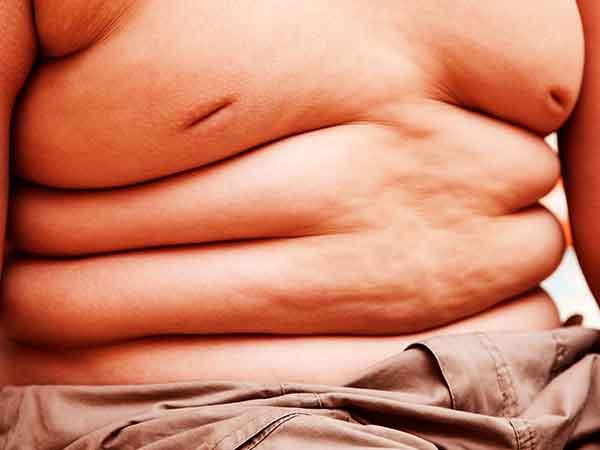 Landen met dikste inwoners 2020 – Top 215 obesitas per land