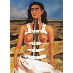 De gebroken zuil / The Broken Column (1944) - Frida Kahlo