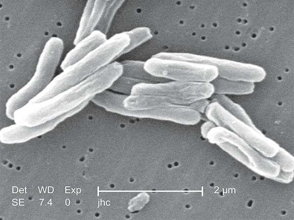 Dodelijkste bacteriën ter wereld